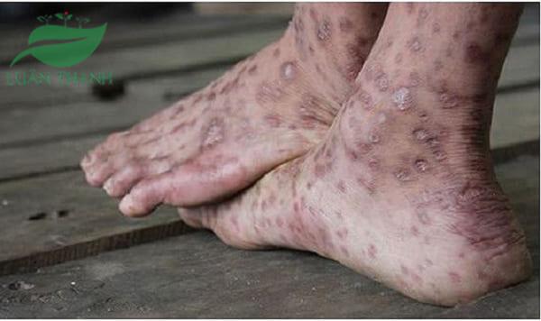 Nguyên nhân của bệnh viêm da cơ địa