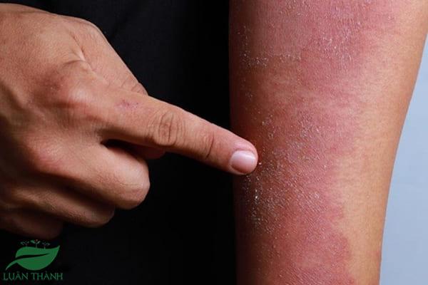 Bệnh viêm da cơ địa là gì?