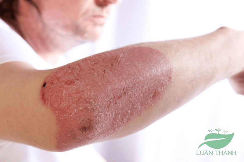 Bệnh chàm là gì? Nguyên nhân và cách điều trị