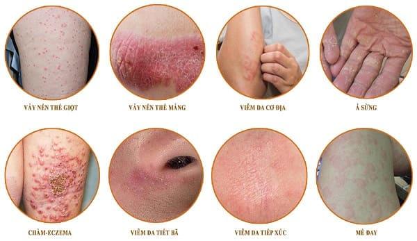 Nhận biết các bệnh về da thường gặp