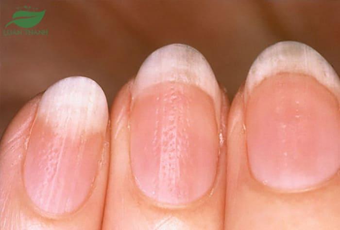 Hình ảnh bệnh vảy nến móng tay