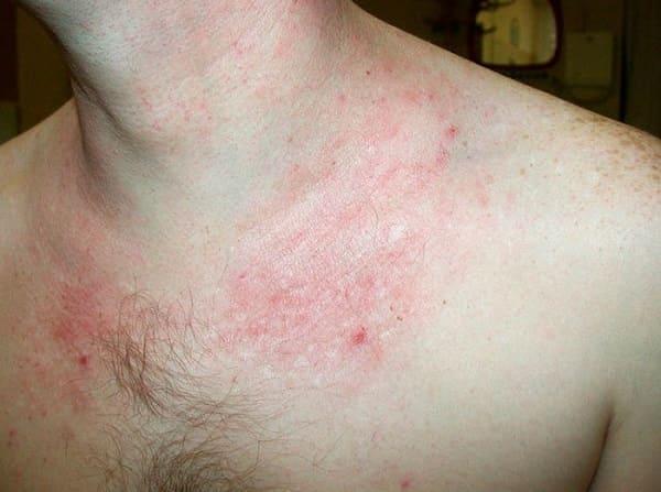 Bệnh viêm da cơ địa kiêng ăn gì?