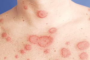 Tổng hợp các bệnh về da thường gặp hiện nay