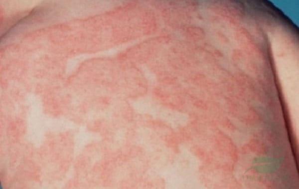 Bệnh vảy nến phấn hồng có nguy hiểm không?