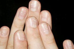 Bệnh vảy nến móng tay, nguyên nhân và cách điều trị
