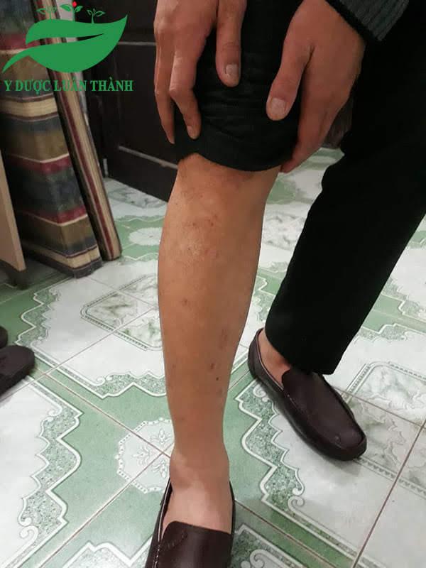 Hình ảnh chân anh Hải khi chưa sử dụng sản phẩm