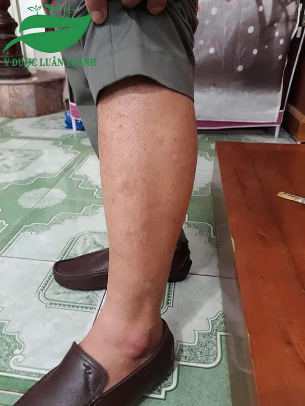 Chân anh Hải giờ chỉ còn mờ mờ sẹo