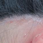 Da đầu có nhiều vảy trắng là biểu hiện của bệnh gì?