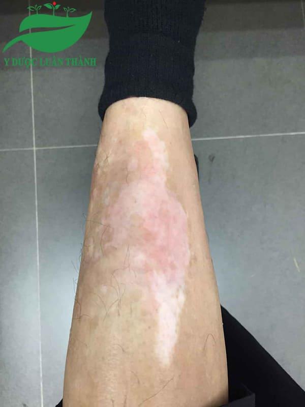 Hình ảnh chụp sau khi dùng sản phẩm được 40 ngày của anh Hạnh