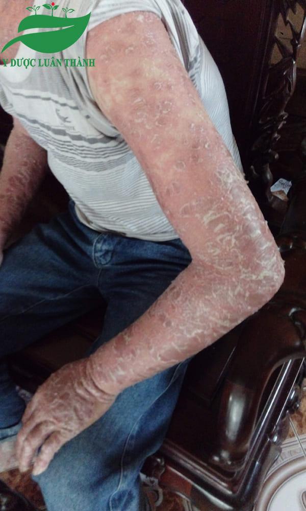 Vùng cánh tay sau 20 ngày sử dụng sản phẩm