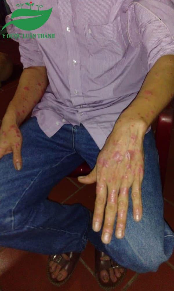 Hai bên cánh tay cũng bị ảnh hưởng