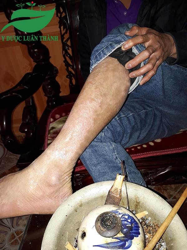 Các nốt đỏ ở chân đã biến mất hoàn toàn