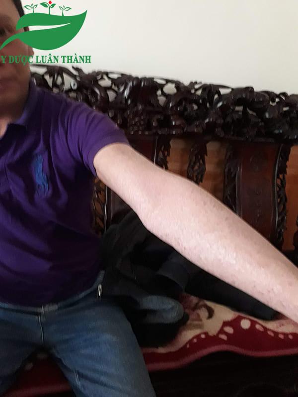 Vùng cánh tay cũng dần quay trở lại tình trạng ban đầu