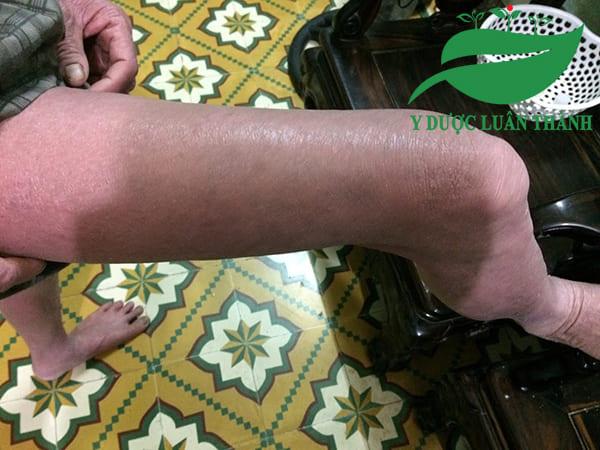 Ảnh chụp vùng đùi của Bác Phú sau khi dùng sản phẩm được 5 tháng