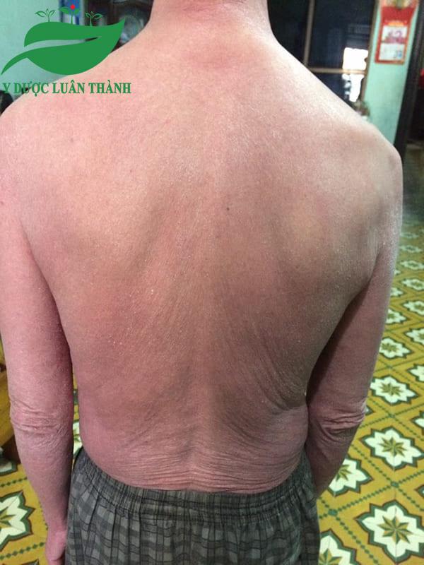 Đã không còn những vết mẩn đỏ trên lưng