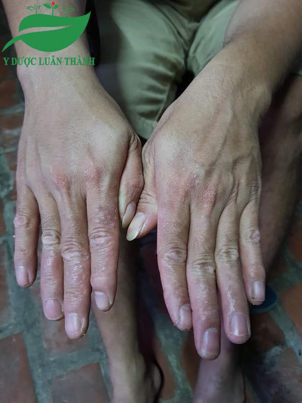 Những nốt mụn nước li ti và bong tróc trên 2 bàn tay