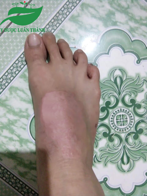 Da chân cũng đã được cải thiện sau 2 tháng dùng sản phẩm
