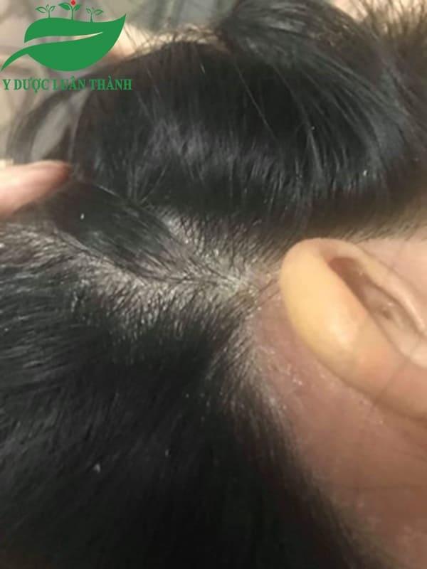 Da đầu bị đóng vảy dày đặc