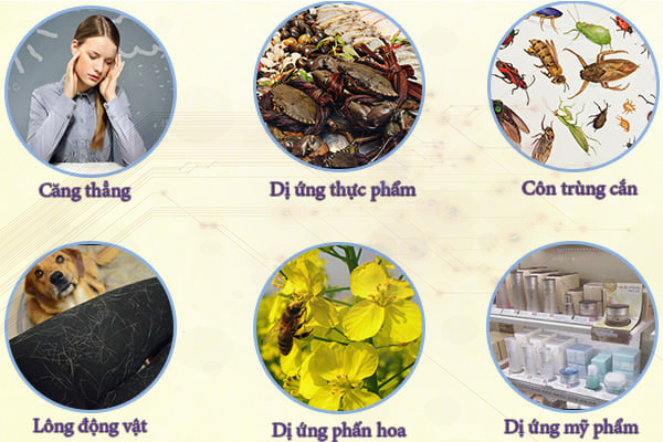 Những nguyên nhân phổ biến dẫn đến bệnh mề đay