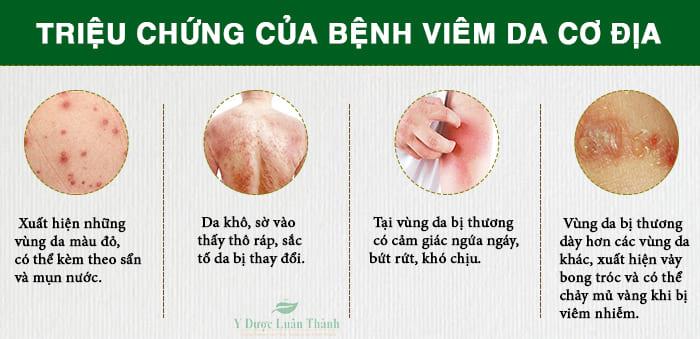 Những triệu chứng cơ bản của bệnh viêm da cơ địa