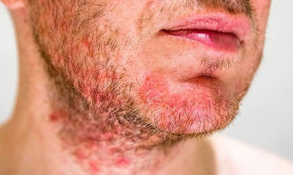 Nam giới có tỷ lệ mắc viêm da tiết bã cao hơn so với nữ