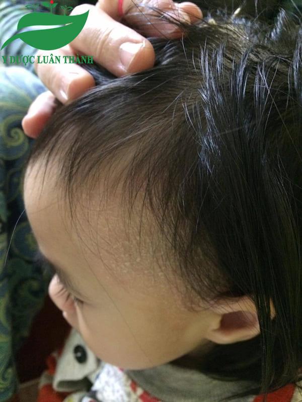 Những vảy da bong tróc giảm dần