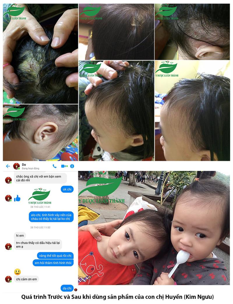 Hình ảnh trước và sau của con chị Huyền, Kim Ngưu