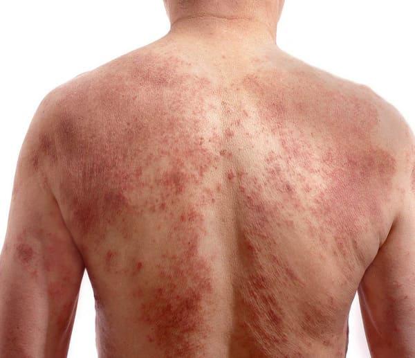 Trong xã hội phát triển, các bệnh về da ngày càng trở nên phổ biến hơn