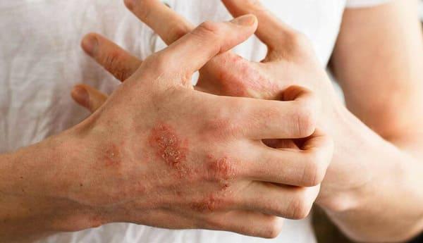 Những biểu hiện cơ bản của viêm da cơ địa