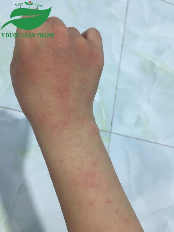 Tình trạng mề đay ở tay sau 1 tháng sử dụng sản phẩm