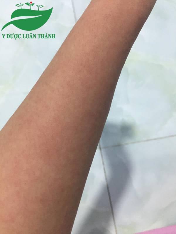 Các nốt mẩn đỏ trên tay đã dần biến mất sau 1 tháng