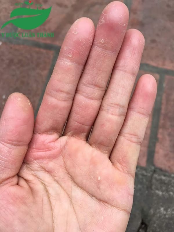 Viêm da cơ địa ngón tay