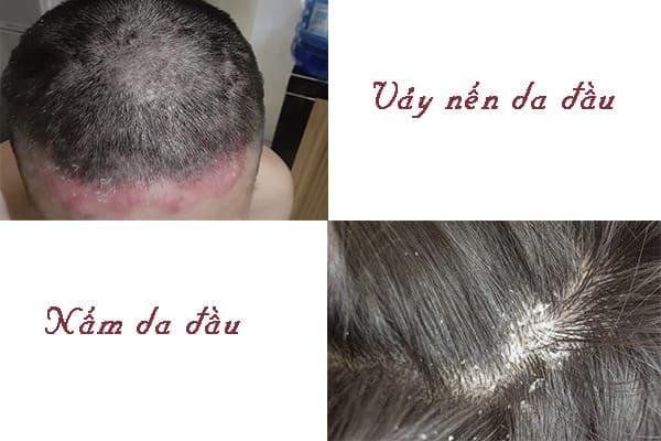 Phân biệt vảy nến da đầu và nấm da đầu