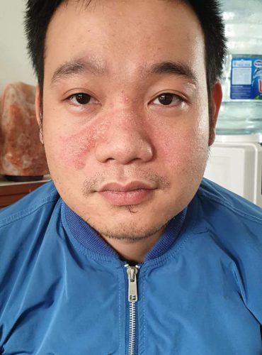 Hình ảnh Trước và Sau khi dùng sản phẩm của bạn Thắng ở Hà Nội (Viêm da cơ địa)