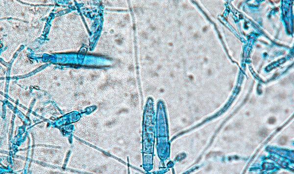 1 số chủng nấm là tác nhân chính gây ra nấm da đầu