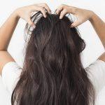 6 cách trị vảy nến da đầu tại nhà đơn giản nhưng hiệu quả bất ngờ
