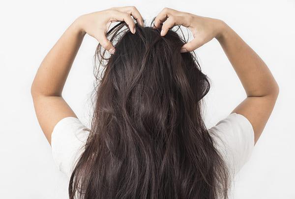 Vảy nến da đầu mang lại những mặc cảm cho người bệnh, nhất là đối với phái nữ