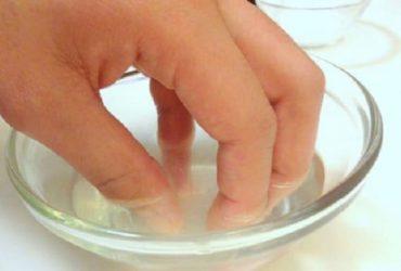 Phương pháp điều trị vảy nến móng tay bằng giấm (dấm)