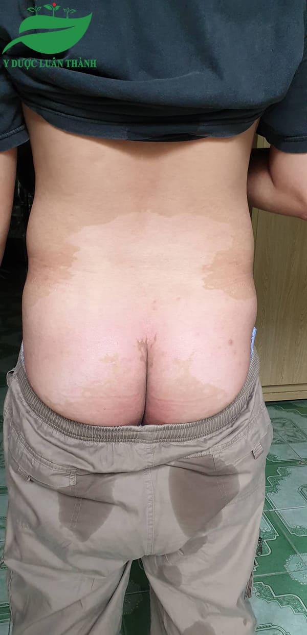 Ảnh vùng mông sau 2 tháng sử dụng sản phẩm