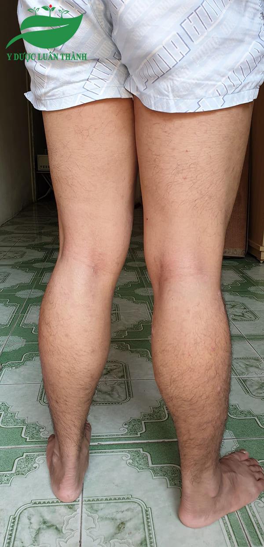 Các vùng da bị bệnh gần như đã trở về bình thường.