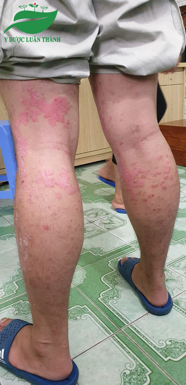 Ảnh chụp vùng chân của người bệnh khi mới đến gặp Luân Thành