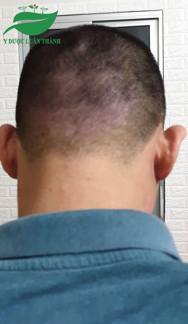 Ảnh chụp vùng gáy lúc chưa dùng sản phẩm