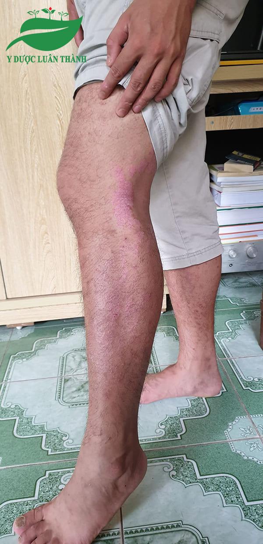 Ảnh chụp vùng chân của người bệnh