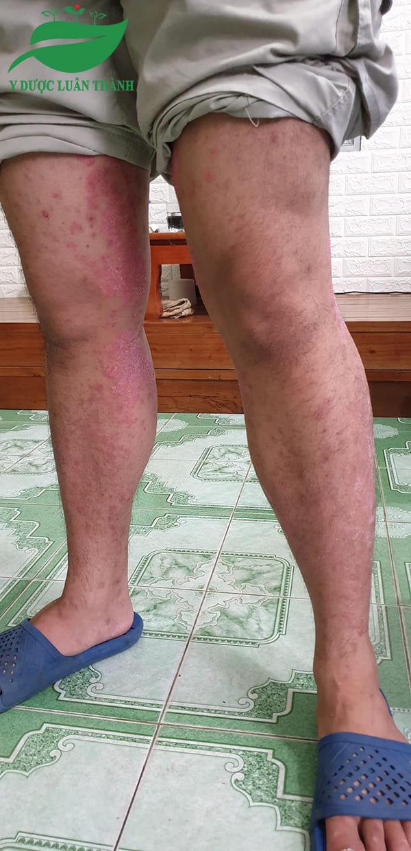 Những vết loang đỏ trên chân