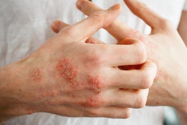 Chàm và cách điều trị bệnh chàm mãn tính hiệu quả