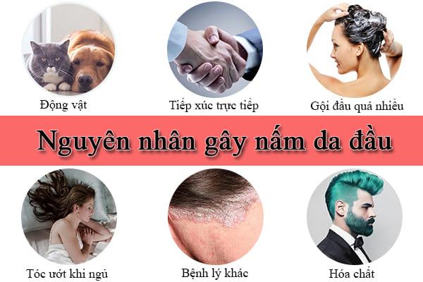 Nguyên nhân dẫn đến nấm da đầu