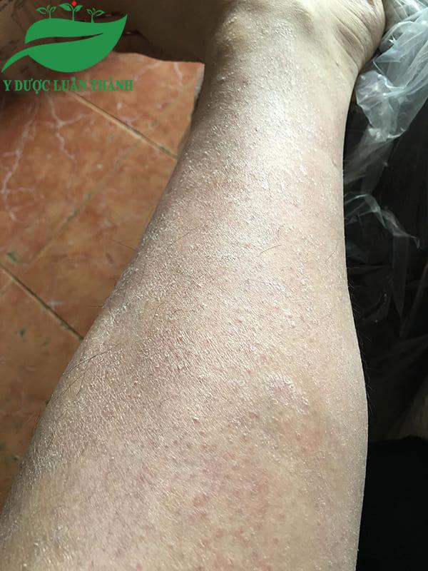 Những mẩn đỏ li ti và rất nhiều vảy trắng ở chân