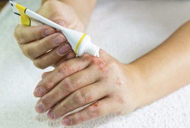 Cách chữa viêm da cơ địa ngón tay, nên kiêng gì khi bị bệnh?