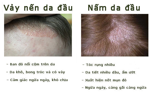 Triệu chứng phân biệt nấm da đầu và vảy nến da đầu