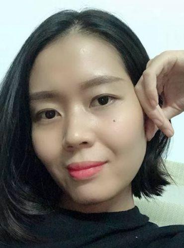 Em Vân ở Biên Hòa, Đồng Nai bị Viêm da cơ địa